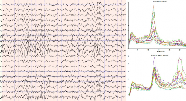 EEG FFT analysis software